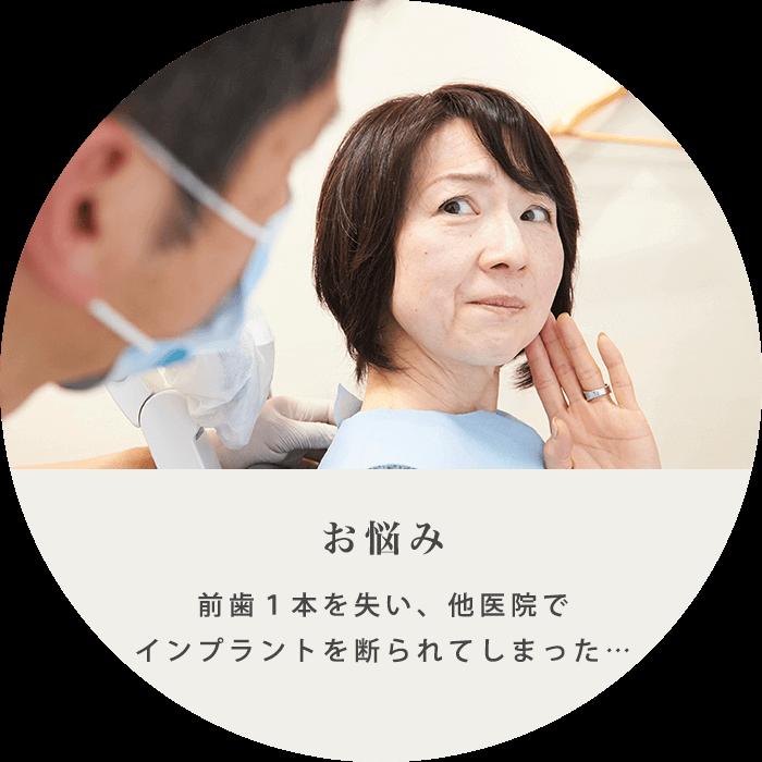 インプラント治療の例
