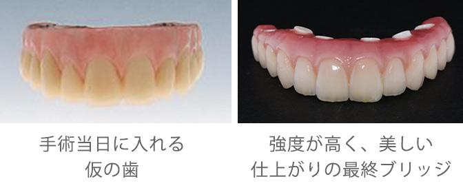 仮の歯と最終ブリッジ
