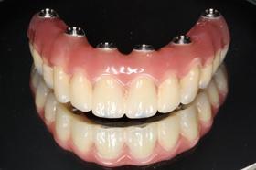 インプラント手術後 仮歯
