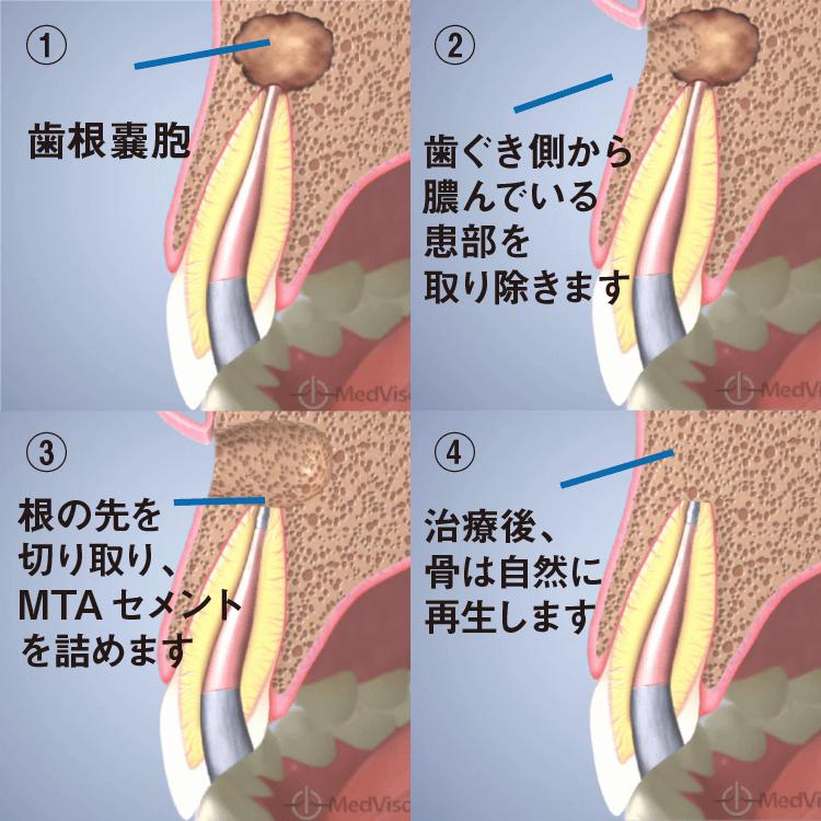 歯を残す歯根端切除術(アピコエクトミー)