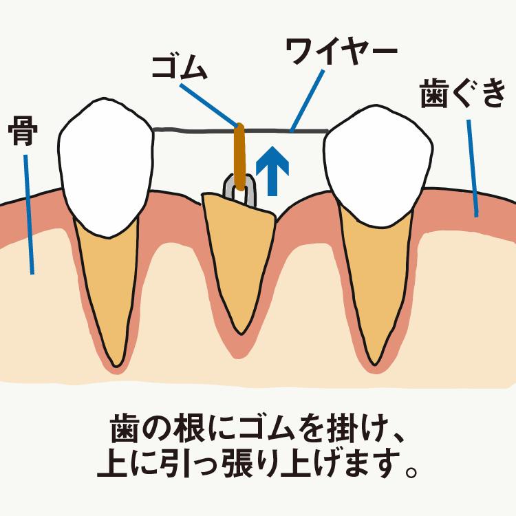 歯を残す治療-エクストリュージョン-
