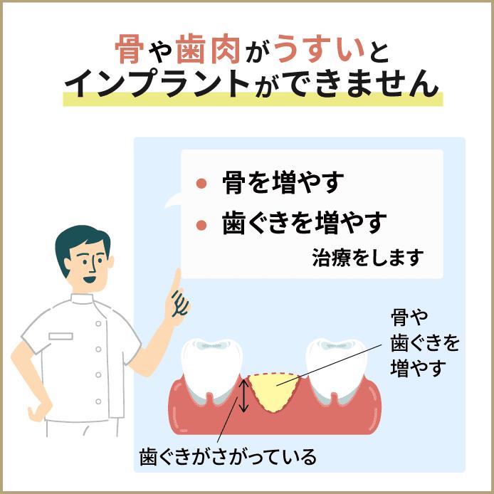 歯ぐき、歯肉が少ないと治療ができません